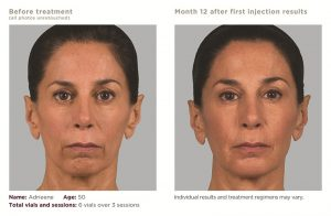 Sculptra Before and 12 Months After