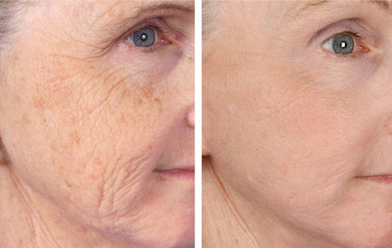 Fractional Laser Worth it? Reviews, Cost, Pictures - RealSelf