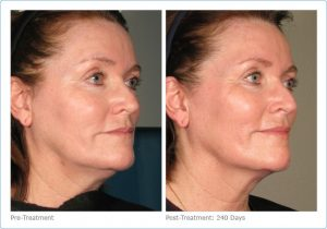 Ultherapy FAce Tighetening, Alpharetta, Johns Creek Before and After