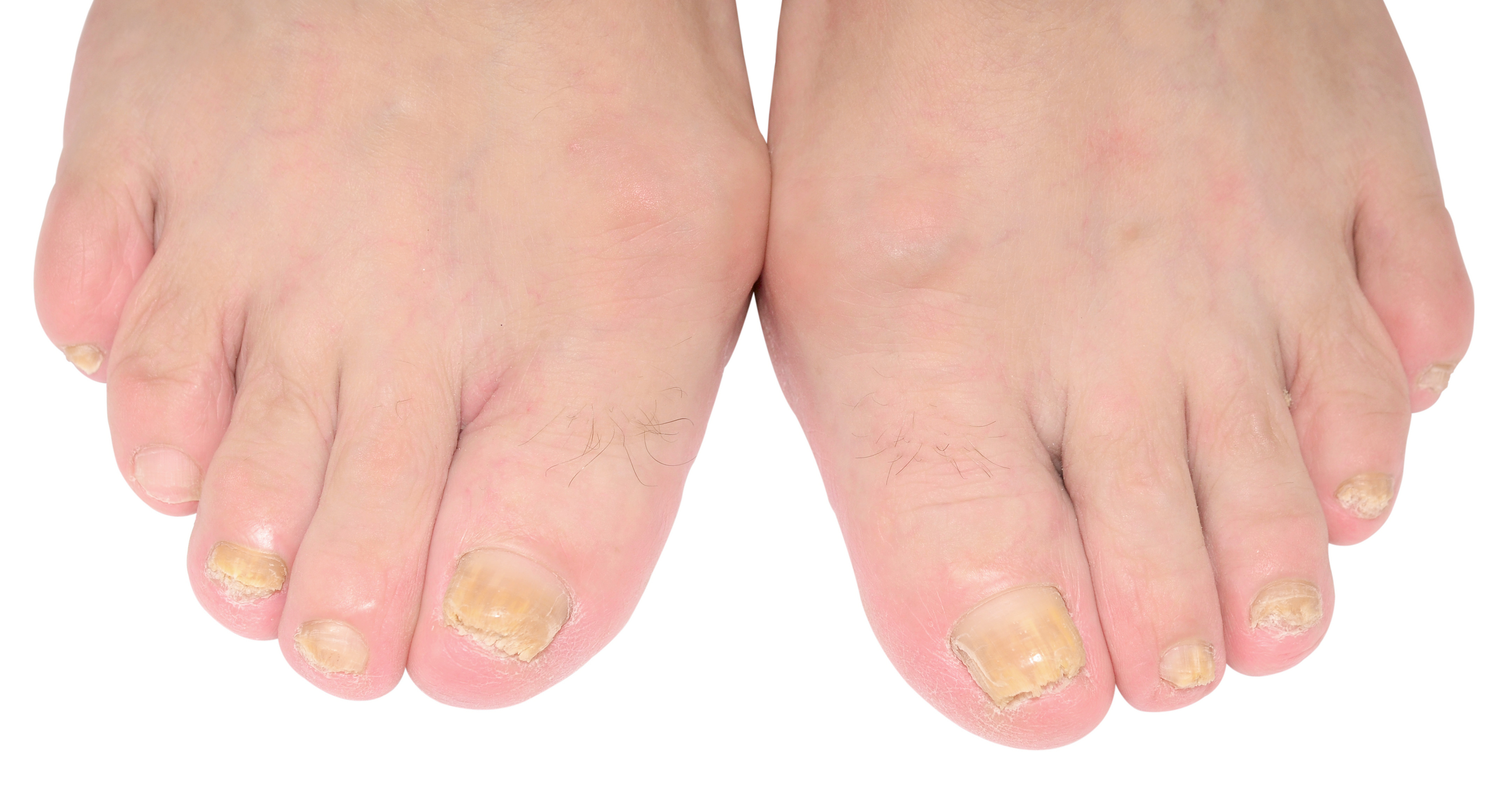 Toenail Fungus | Atlanta | Alpharetta | LaserMed Skin and Vein Clinic