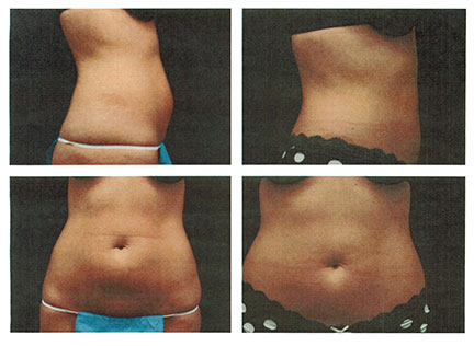 SmartLipo MPX | Liposuction | Paul E. Cox, MD