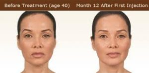 Sculptra Before and After 12 Months