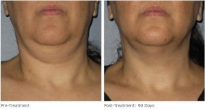 Ultherapy Neck fat reduction, Atlanta