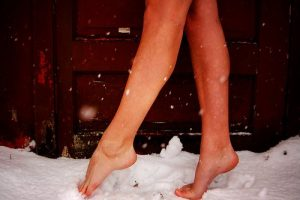 Beautiful Legs By Spring. Enhance Your Legs This Winter With Varicose and Spider Vein Removal and Cellulite Reduction Treatments