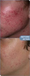 before and after photos of acne