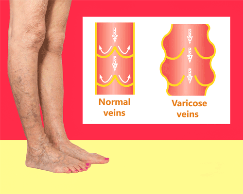 Varicose vein examples