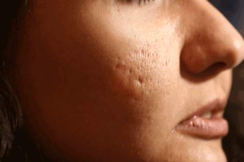 Ice Pick acne scaring