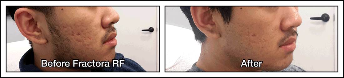 Fractors RF treatment for acne before and after photo of young Asian guy.
