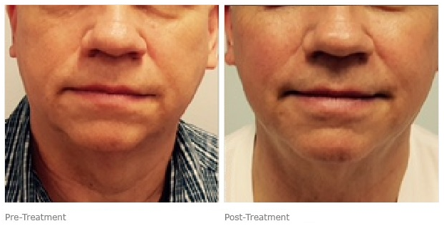 Ultherapy Before & After | Laser Med