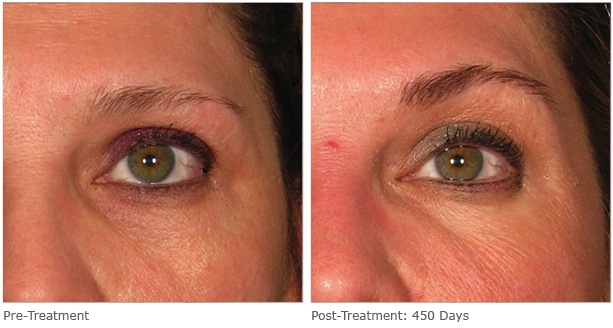 Ultherapy: Before & After