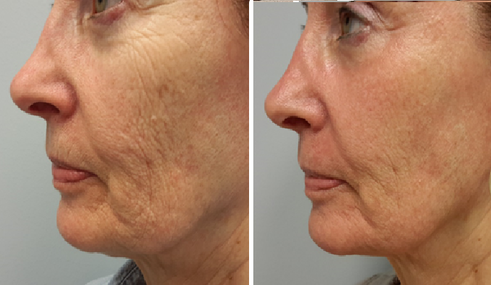 Before and After Sculptra