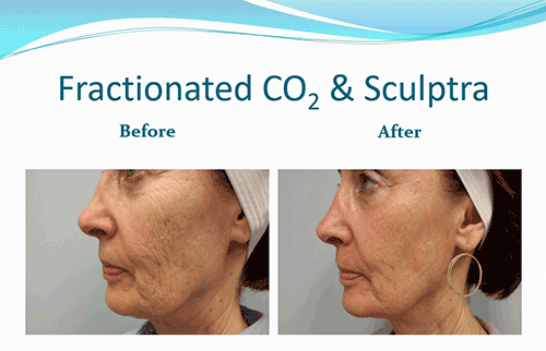 Before_after Sculptra_fractionated CO2