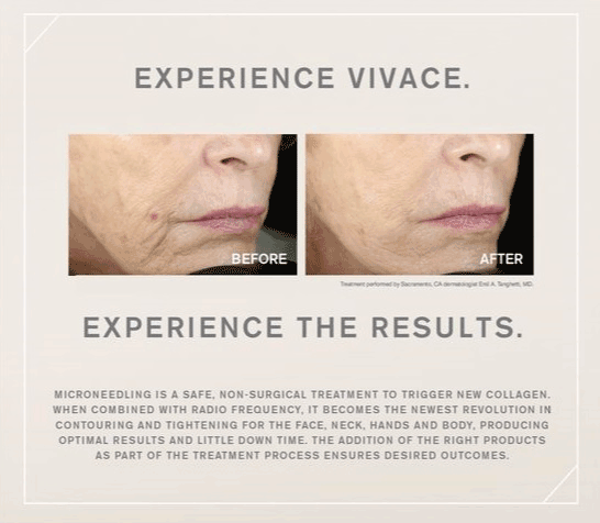 Vivace microneedling RF Before and after